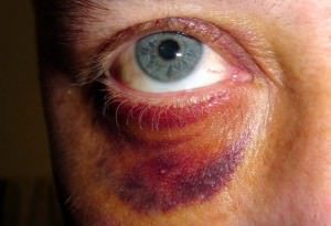 man black eye 1