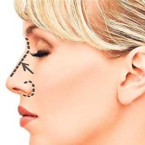 woman nose job