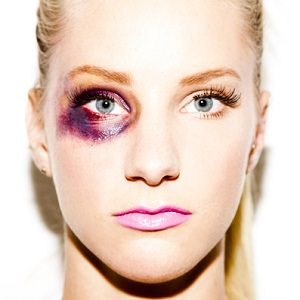 woman black eye 7
