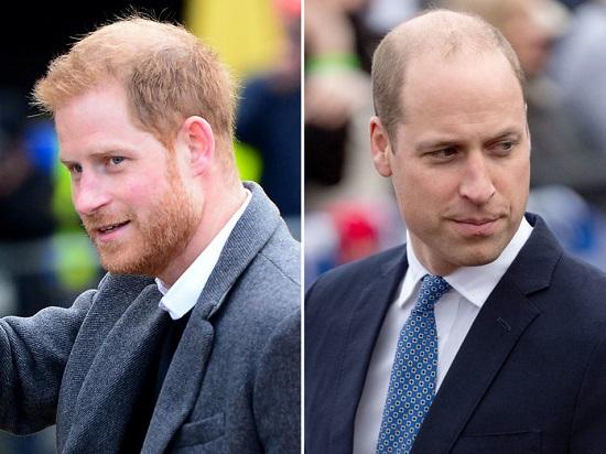 prince-william-harry-bald.jpg